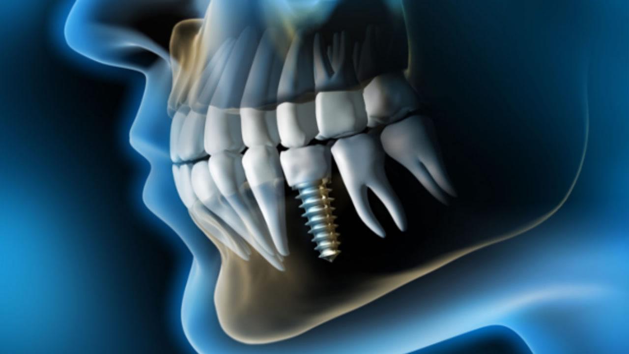 Imagen implantes dentales en clínica dental La Línea de la Concepción, Smile Center
