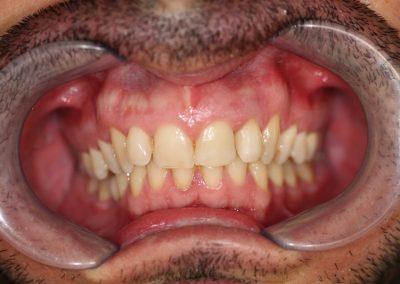 Blanqueamiento interno La Línea de la Concepción   Clínica Dental Smile Center