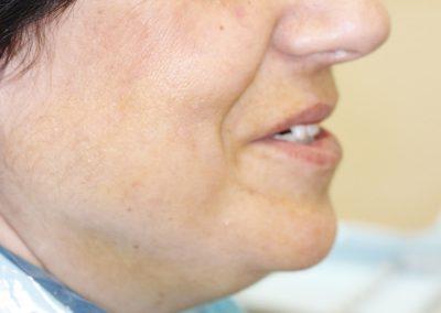 Ortodoncia y posteriormente prótesis sobre implantes La Línea de la Concepción   Clínica Dental Smile Center
