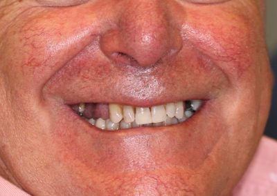 Prótesis sobre implantes La Línea de la Concepción   Clínica Dental Smile Center