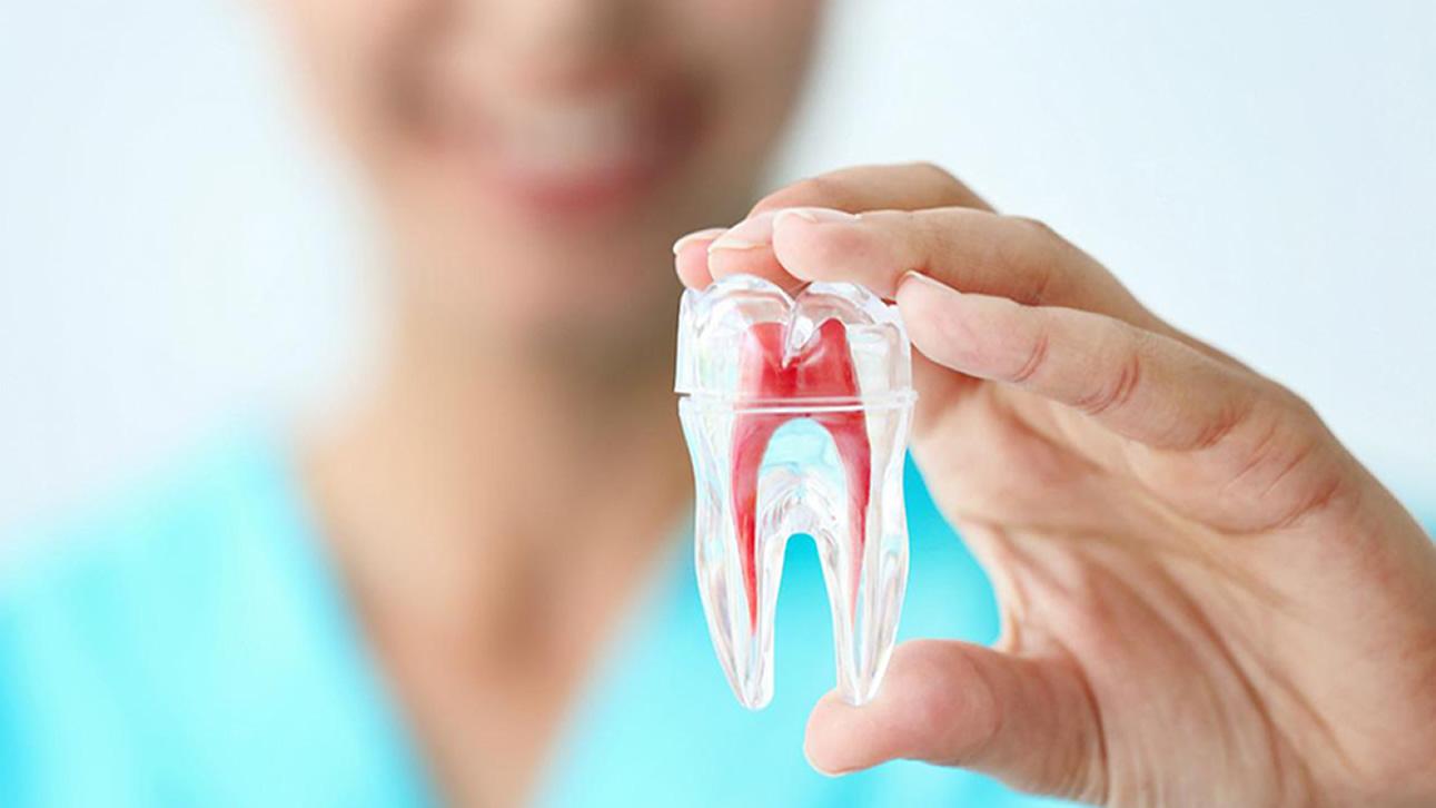 Endodoncia La Línea de la Concepción   Clínica Dental Smile Center