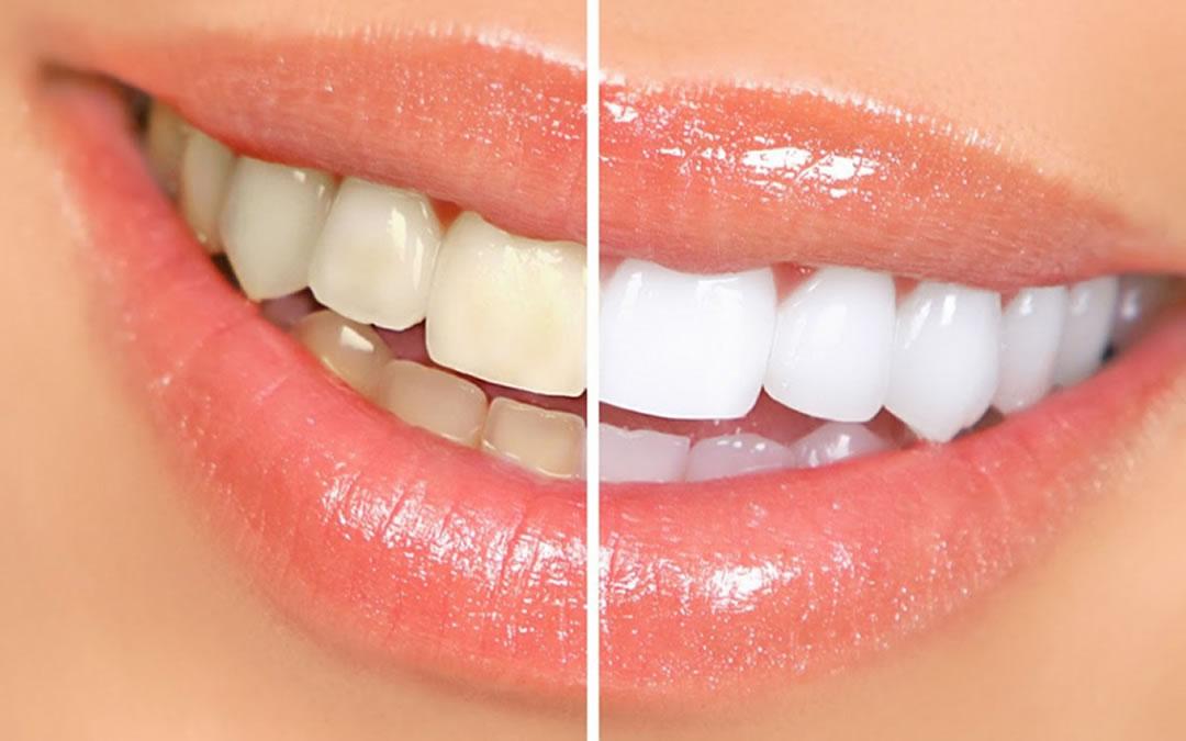 Tratamientos de blanqueamiento dental La Línea de la Concepción   Clínica Dental Smile Center