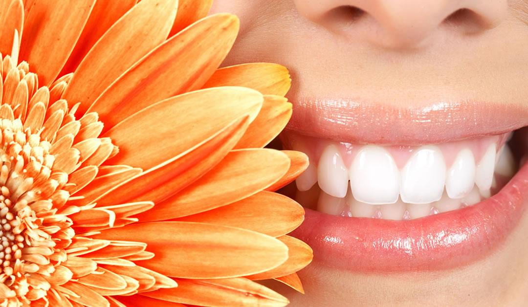 Blanqueamiento dental La Línea de la Concepción   Clínica Dental Smile Center