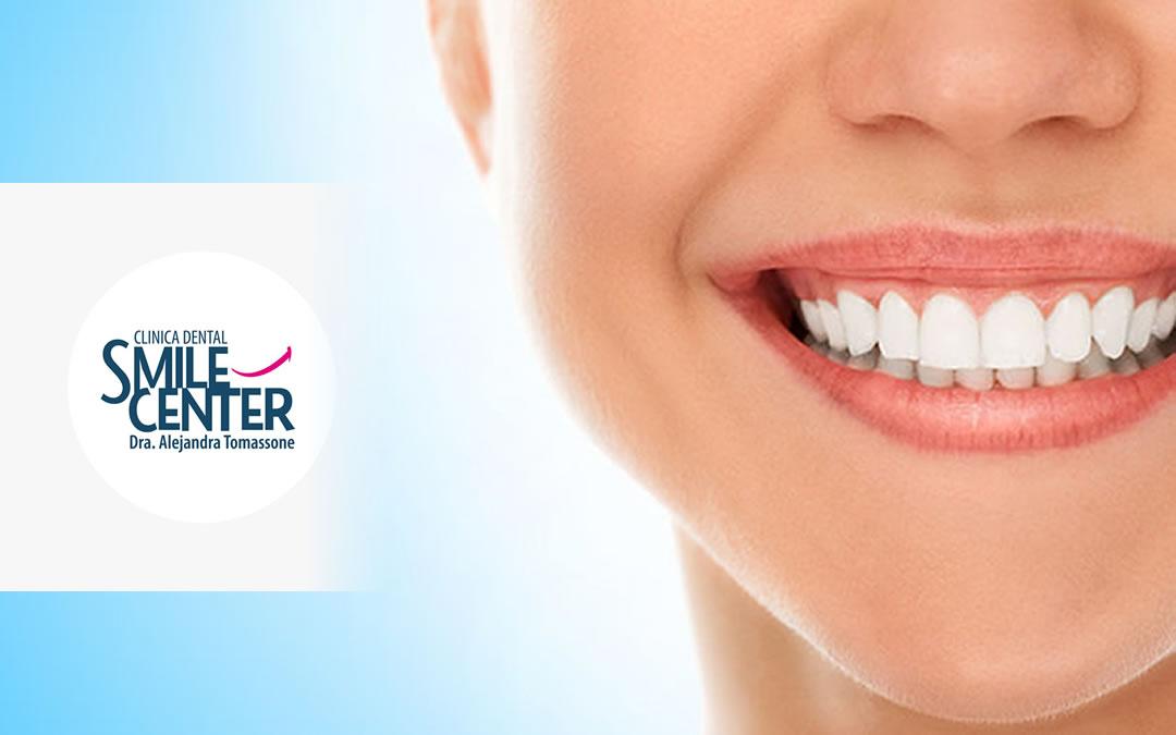 Carillas estéticas La Línea de la Concepción | Clínica Dental Smile Center