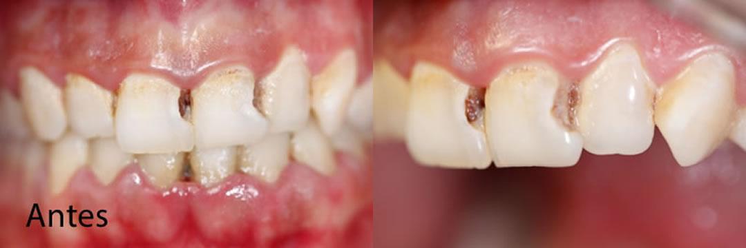 Casos clínicos La Línea de la Concepción   Antes   Clínica Dental Smile Center