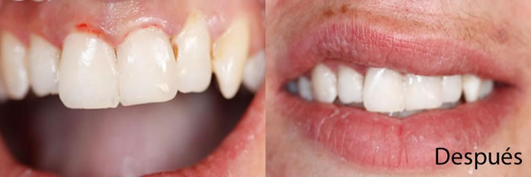Casos clínicos La Línea de la Concepción   Después   Clínica Dental Smile Center