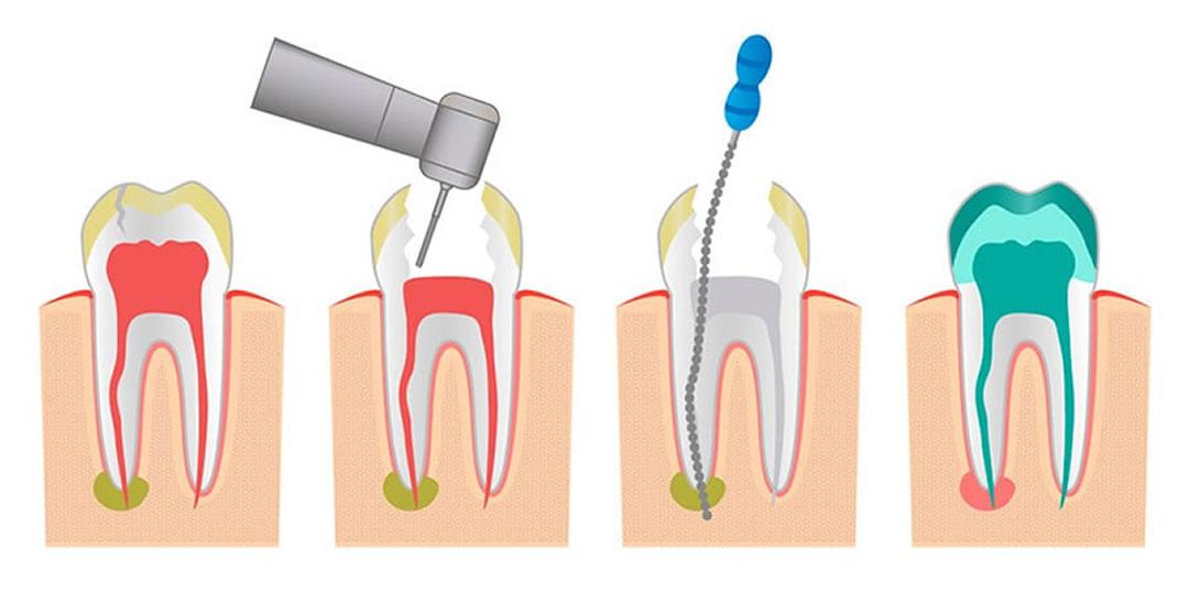 Tratamiento de endodoncia La Línea de la Concepción   Clínica Dental Smile Center