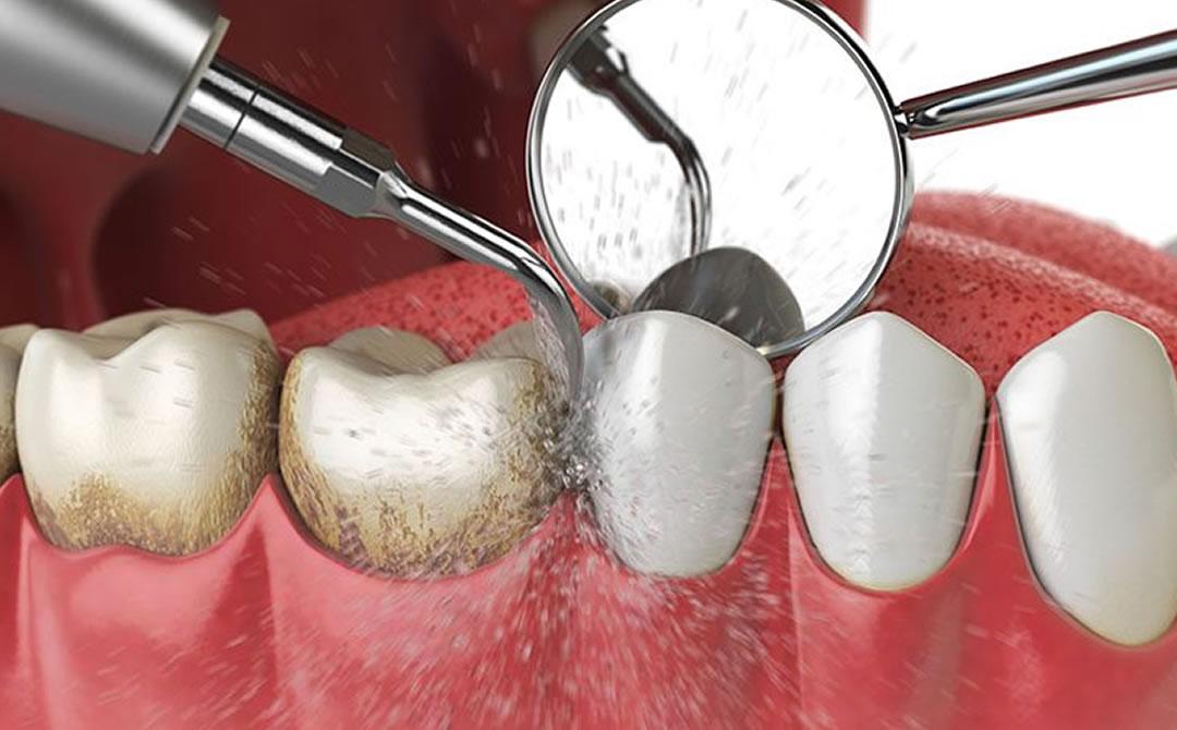 Limpieza dental La Línea de la Concepción   Clínica Dental Smile Center